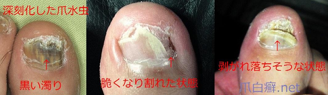 爪水虫(末期症状)の写真