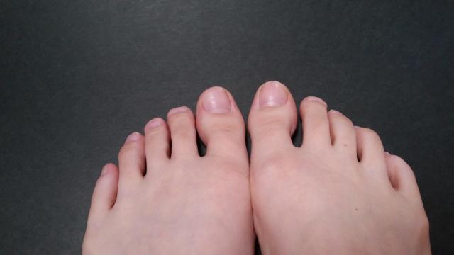 爪水虫(爪白癬)が完治して綺麗になった爪