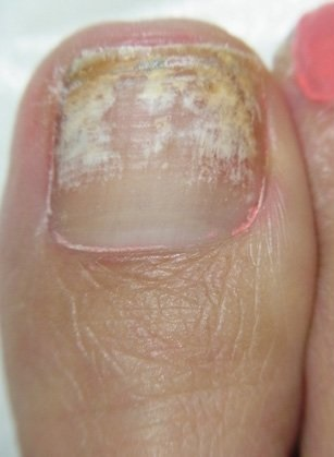 爪水虫(爪白癬)で白くボロボロの足の爪