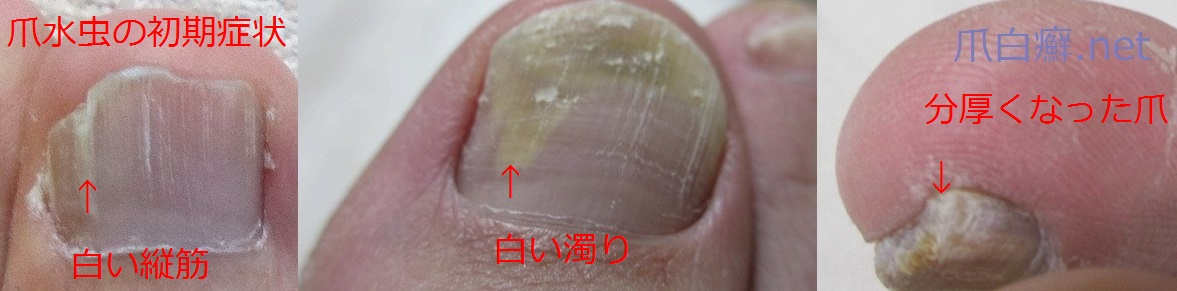 爪水虫(初期症状)の写真