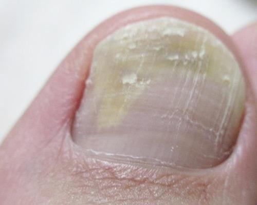 爪水虫(爪白癬)の親指の爪