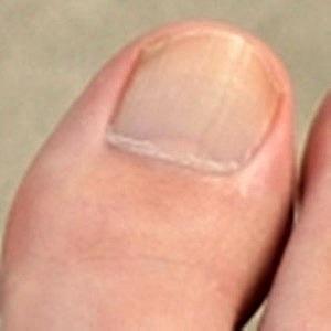 爪水虫(爪白癬)が完治した爪